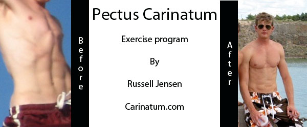 Pectus Carinatum Non Surgery Workouts and Exercises for Bodybuilding